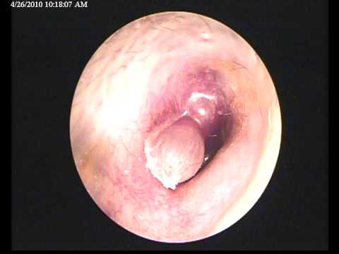 Glomus Tympanicum: A Pulsating Mass in the External Auditory Meatus