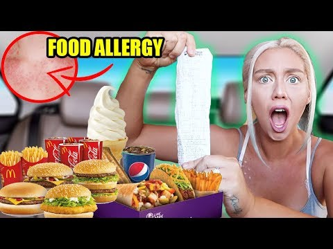 Letting The Person in Front of Me DECIDE What I Eat for 24 HOURS! SEVERE FOOD ALLERGEY !