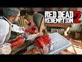 Omg M dico Amputa Un Brazo En Red Dead Redemption 2 El