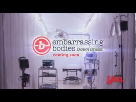 Embarrassing Bodies Down Under- Coming Soon