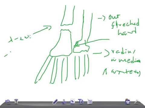 Medical Video Lecture, Orthopedics: Galeazzi fracture