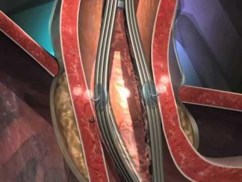 Stretta: Tratamento Refluxo Gastroesofágico