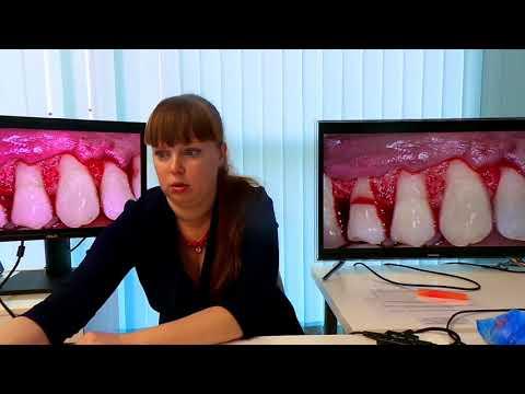 Хирургическое лечение рецессий десны в области зубов и имплантатов. Часть 18