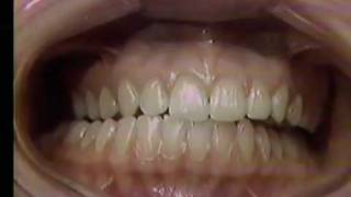 The Clinical Occlusal Examination