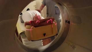 Tumore al polmone, la TAC può salvare una vita su 5