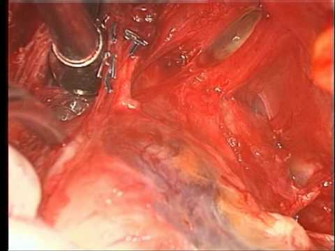 Radical Retropubic Prostatectomy - Open Technique