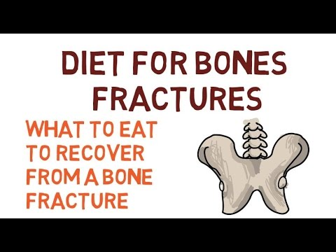 DIET TO RECOVER FROM A FRACTURED FEMUR, HIP, BONES, SPRAINS AND FRACTURES