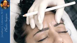 Video Botox: Forehead/Eyes in a Young Woman For A More Youthful Appearance At Lebowitz Plastic Surgery, NY MP3, 3GP, MP4, WEBM, AVI, FLV Juli 2018