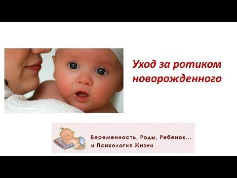 Молочница на языке у ребенка: как и чем лечить, и симптомы