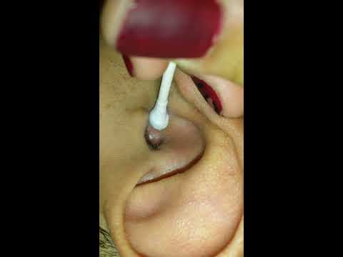 Exploding pimple inside ear