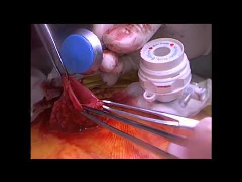 Лапароскопическое закрытие колостомы