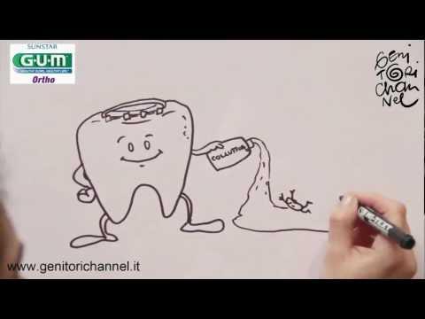 come si lavano i denti? e se ho l'apparecchio?