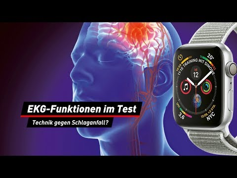 EKG-Funktionen im Test: Warnung vor Schlaganfall?