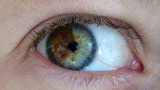 Video Doctor Turns Brown Eyes Blue Permanently with Laser MP3, 3GP, MP4, WEBM, AVI, FLV Juni 2018