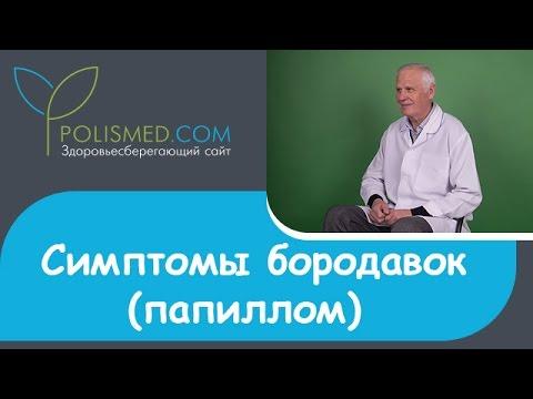 Симптомы бородавок (папиллом): цвет, боль, зуд, кровоточивость