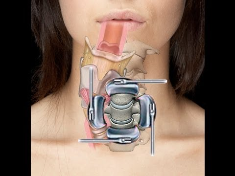 Cervical Spine Surgery (ACDF) - Swallow & Voice Problems