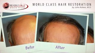 Beverly Hills Hair Restoration results-Before and After