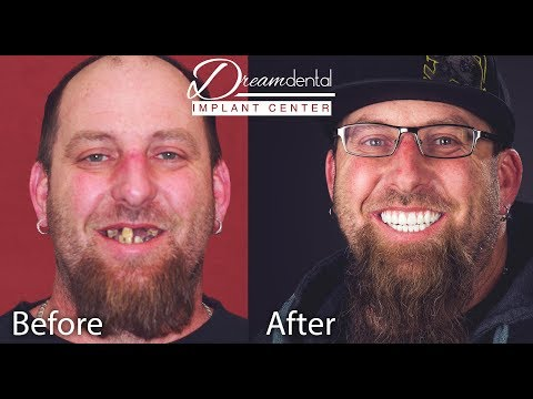 Full Mouth Reconstruction   Dental Implants Review