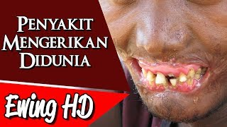Video 5 Penyakit Mengerikan Didunia | #MalamJumat - Eps. 59 MP3, 3GP, MP4, WEBM, AVI, FLV Mei 2019