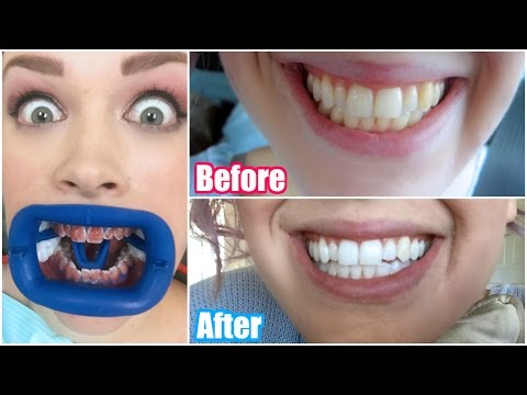 My Professional Teeth Whitening Experience! BEFORE & AFTER