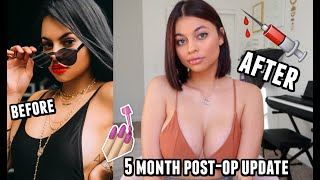 5 Month Breast Augmentation Post Op UPDATE complications & regrets? by Simplynessa15