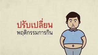 โรคอ้วนลงพุง