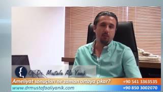 Op. Dr. Mustafa Ali Yanık burun estetiği sonrası sonuçlar ne zaman çıkar