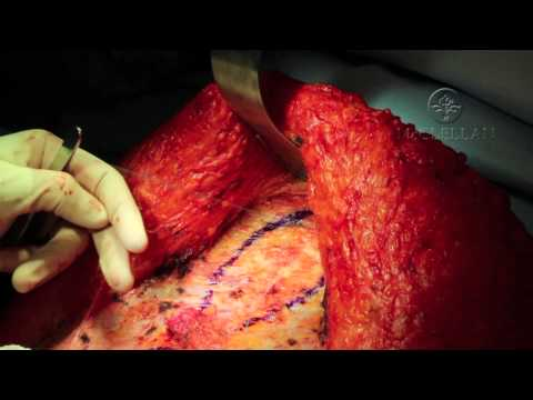Live Surgery: What is an Abdominoplasty (Tummy Tuck) and Rectus Plication: Muscle Tightening