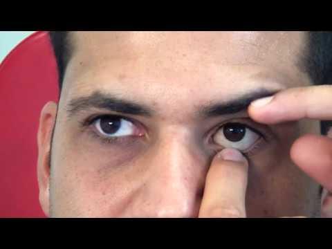 Rimozione e applicazione protesi oculare