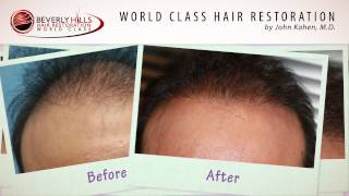 John Kahen hair restoration before and after results video