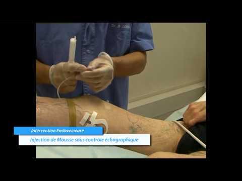 comment traiter varicocele