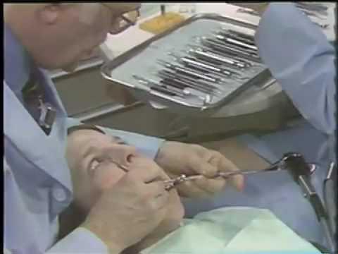 Vier-Einhändige Zahnmedizin in einer Amalgam Platzierung