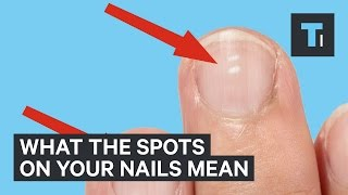 Video What white marks on nails mean about health MP3, 3GP, MP4, WEBM, AVI, FLV November 2017