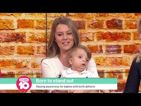 Oliver's Story: Born To Stand Out | Studio 10