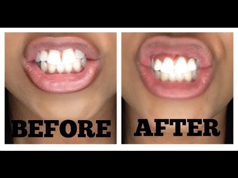 Gave It A Try, Was It Worth The Buy?: Equate 1 Hour Intense-Tech Whitening System