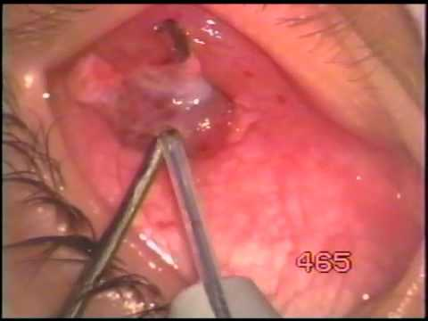 Myomectomy inferior oblique with Fugo blade