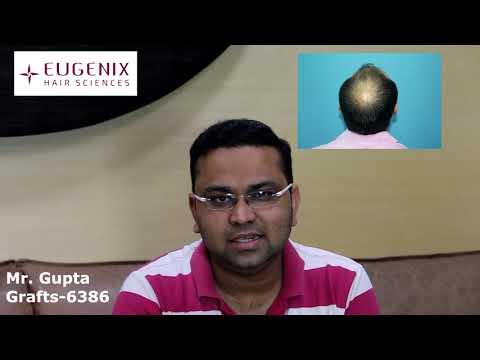 Mr Gupta on his hair transplant - You cant tell I got a hair transplant_A plasztikai sebészet kulisszatitkai. A legmodernebb eljárások, és orvosi hibák. Szilikon völgy