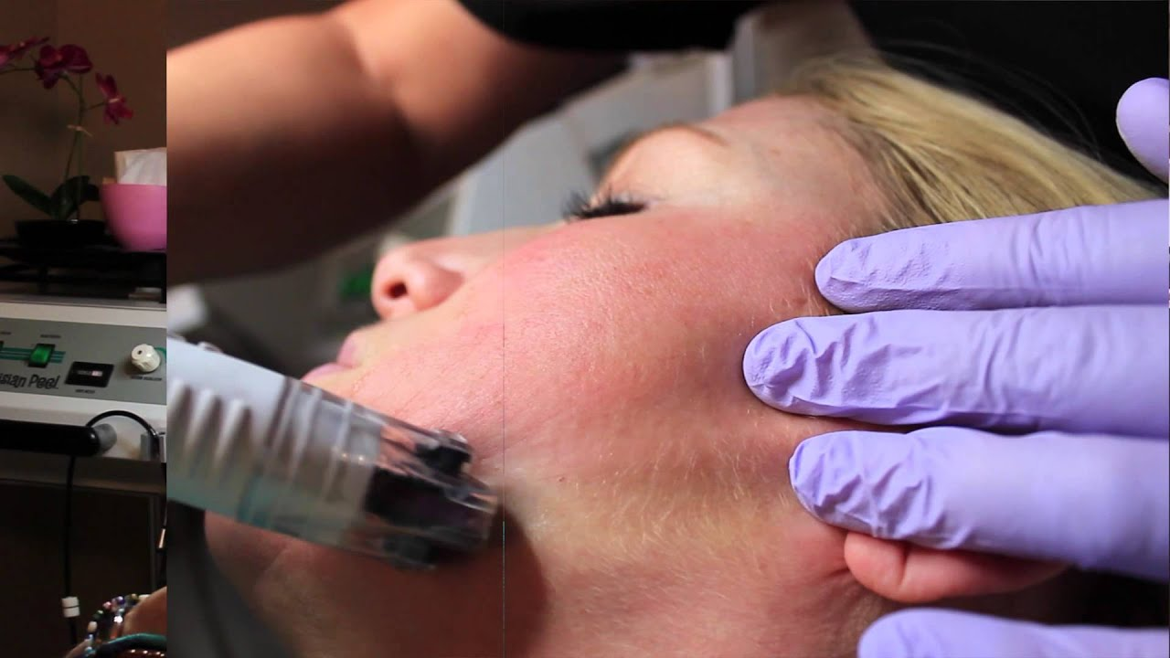 DermaFrac Procedure Now Available at W Cosmetic Surgery
