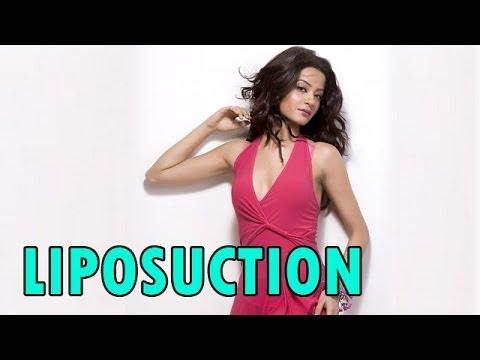 Surveen Chawla underwent 'LIPOSUCTION'