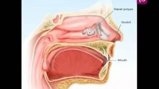 د.هشام القيسي يتحدث عن الانفلونزا | Roya