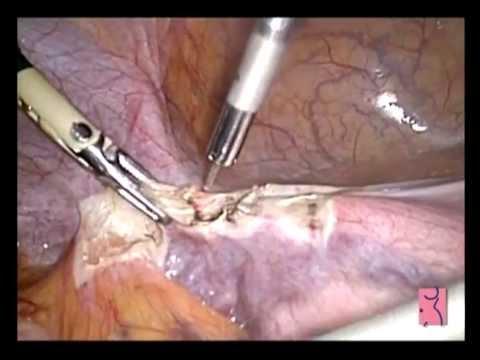 HT por laparoscopia con laser Diodo HP