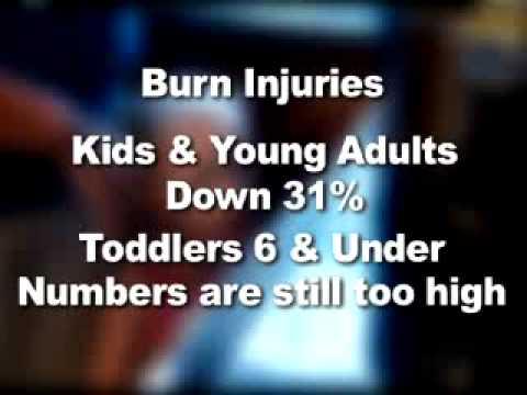 Burn Injuries in Children