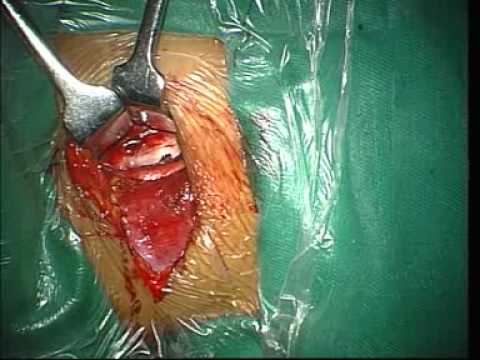 Anterior Cervical Discectomy And Fusion.