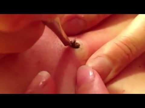 Elle enleve un point noir qui lui bouche un pore sur la peau depuis 20 ans (видео)
