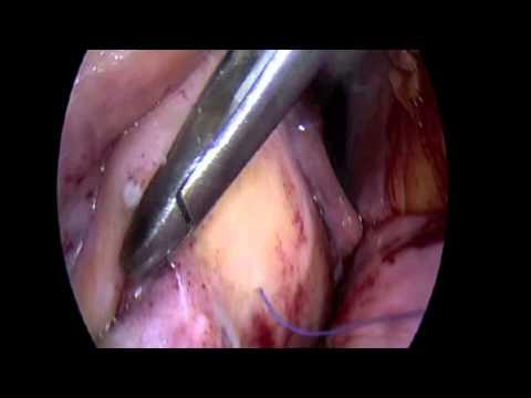 Cirugía de Corazón - Plastia mitral por mínima invasión. Dr. Benigno Ferreira