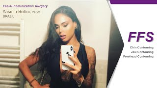 Video Facial Surgery @Kamol Hospital Bangkok thailand MP3, 3GP, MP4, WEBM, AVI, FLV September 2018
