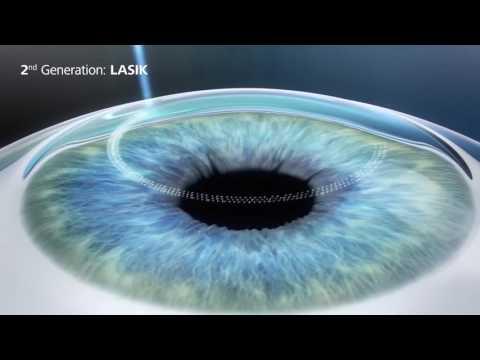 Лазерная коррекция зрения - эволюция