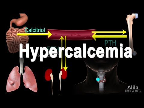 Hypercalcemia - Too Much Calcium, Animation