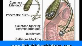 El hígado y la vesícula biliar Flushing Parte 1