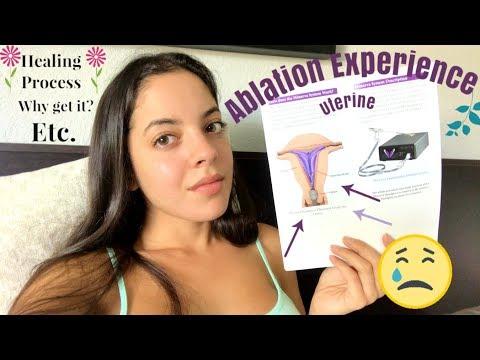 Uterine Ablation experience !!